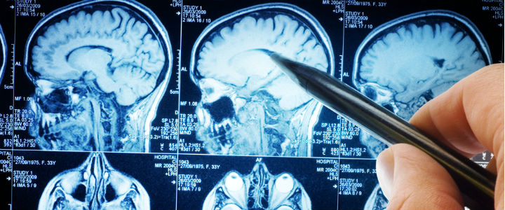 brain_scann